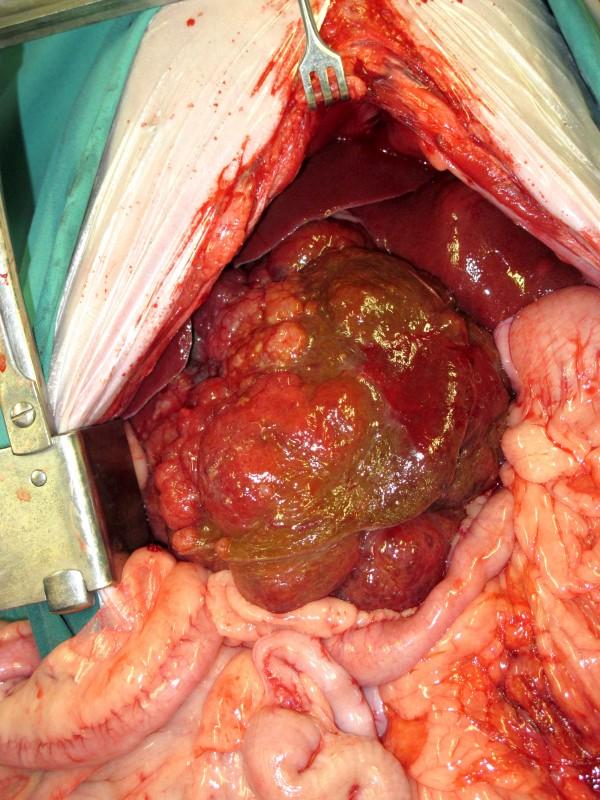 Tumoren der Leber beim Hund – oft erfolgreich behandelbar ...